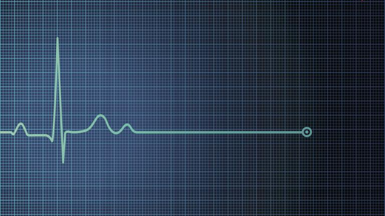 heart monitor flatline